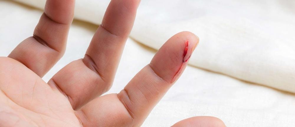 A bleeding cut on a finger